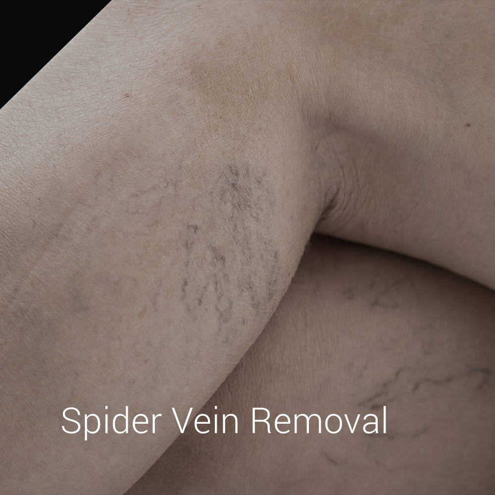 spider vein removal nyc