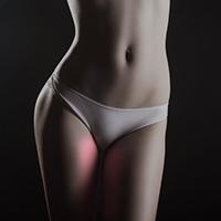 laser hair removal inner thighs